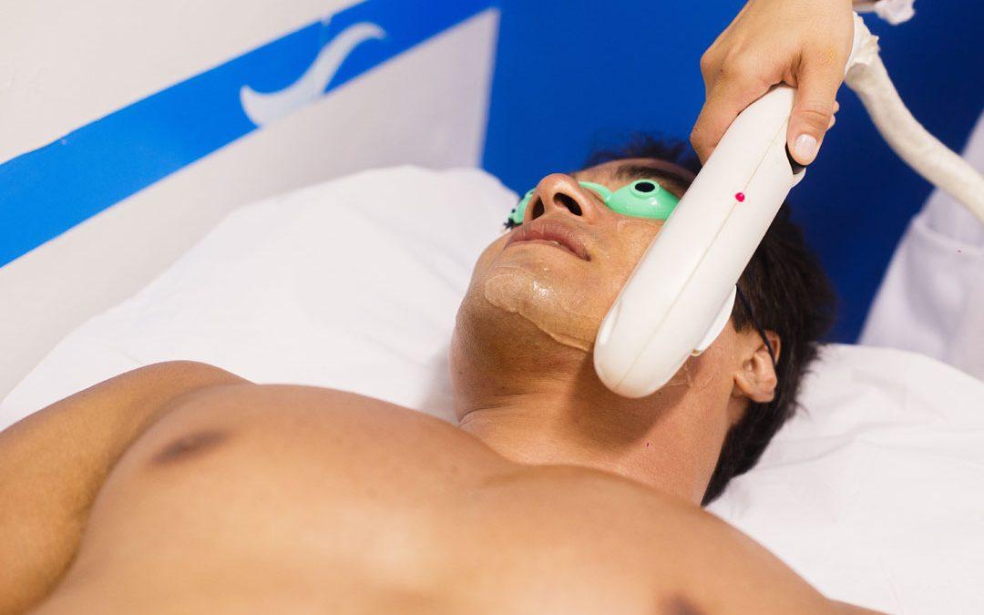 Os mitos e verdades sobre depilação a laser masculina