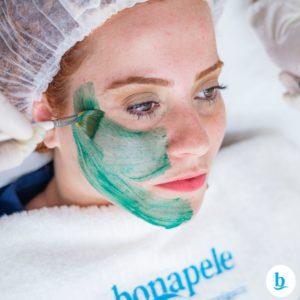 melasma cloasma tratamento combo clinica de estetica bonapele